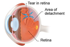 Diabetic Retinopathy | Macular Degeneration Treatment | Retinal Detachment Treatment